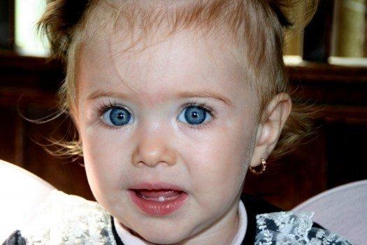 新生儿泪囊炎怎么办 新生儿泪囊炎的原因